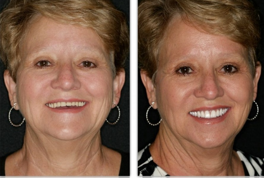 Dentures-Before-After-600.jpg