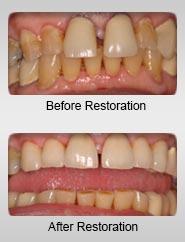 before-after-dental-porcelain-crowns