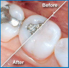 composite-fillings-2