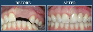 dental-before-and-after-pictures-dental-implants-missing-teeth