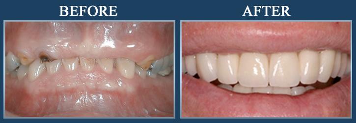 dentures-1