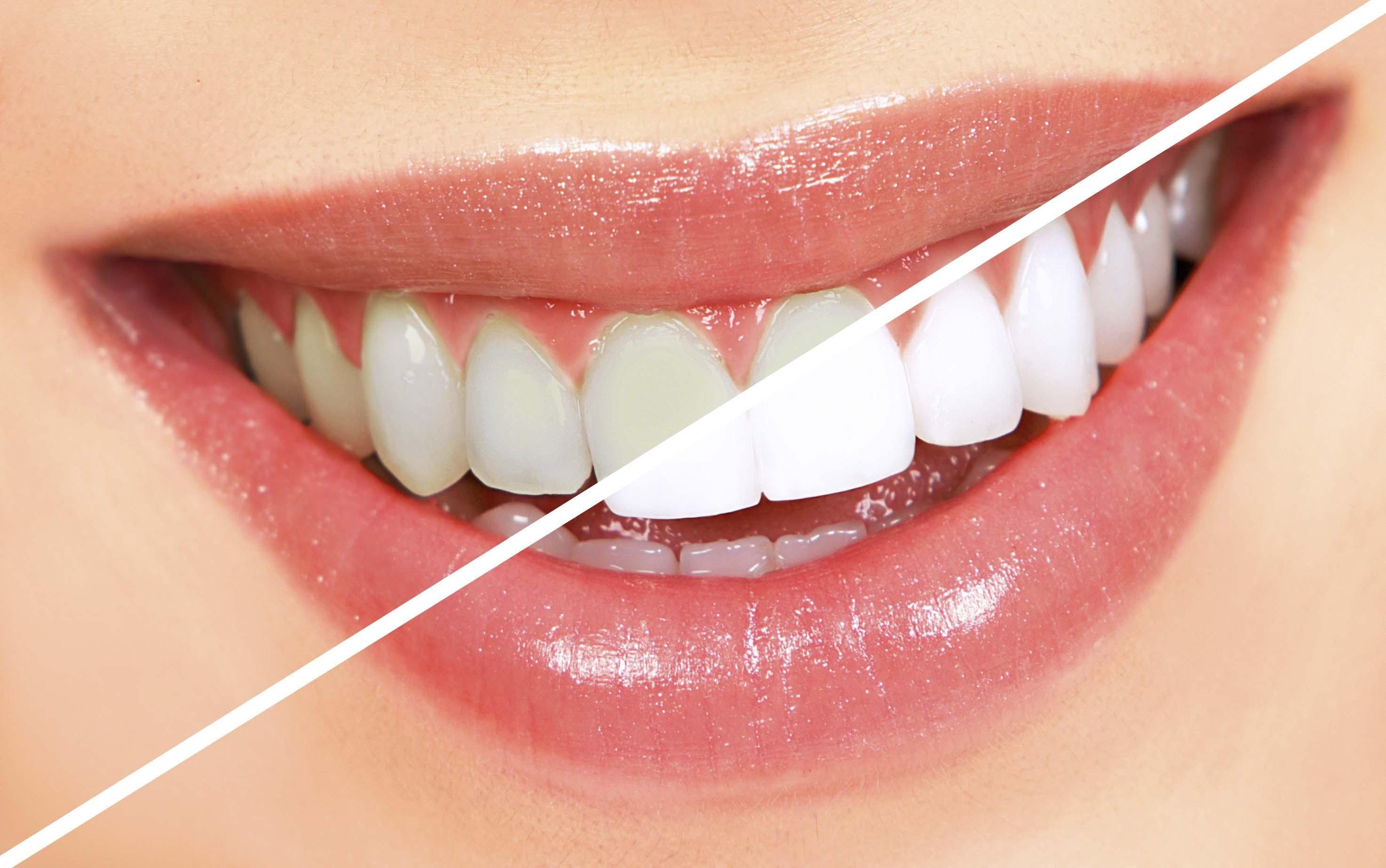Pinellas-Park-Florida-teeth-whitening.JPG