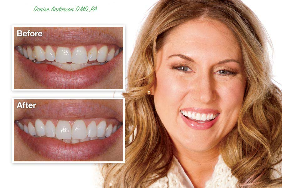 porcelain-veneers-before-after-Denise-Anderson-D.MD.,PA.jpg